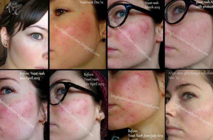 Fungal Acne Causes And Treatments